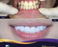Bọc răng sứ có tính thẩm mỹ cao