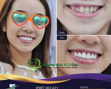 Dán răng sứ cho bạn hàm răng trắng sáng nhanh chóng