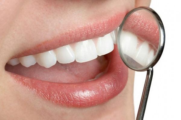 Bọc răng sứ giúp cải thiện tình trạng răng bị chấm đen