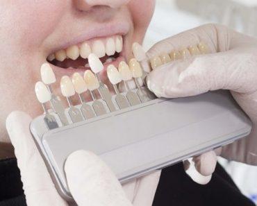 Bọc răng sứ cho răng sâu là giải pháp được nhiều khách hàng lựa chọn