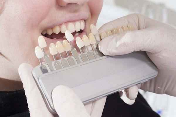 Bọc răng sứ là giải pháp hoàn hảo cho những ai có răng mọc ngược