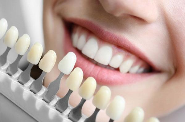 Bọc răng sứ nên chọn phòng khám nha khoa uy tín