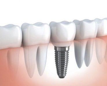 Làm răng implant cho người già?