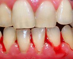 Có nhiều nguyên nhân khiến bà bầu bị chảy máu chân răng
