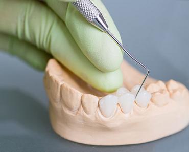 Công nghệ hiện đại tạo nên những dòng răng sứ đạt độ chuẩn xác, tính thẩm mỹ và chất lượng