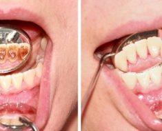Răng bị đen bên trong sau khi được điều trị