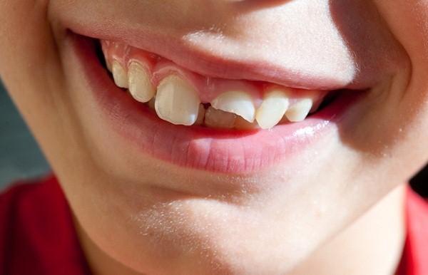 Giấc mơ gãy răng có thể xuất hiện do nhiều nguyên nhân khác nhau