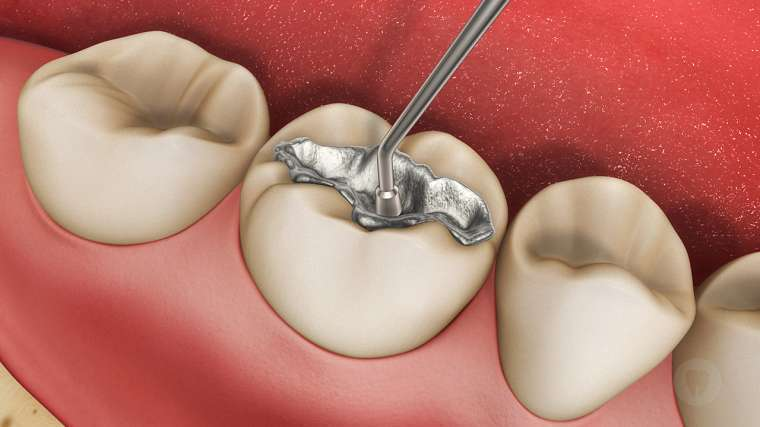 Hàn trám răng – Phương pháp điều trị sâu răng hiệu quả