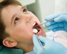 Kỹ thuật trám răng phòng ngừa giúp điều trị răng sâu cho trẻ