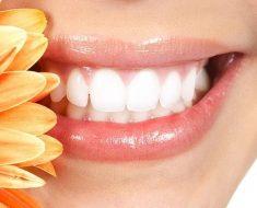 Khắc phục vấn đề cười hở lợi như thế nào?