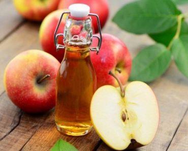 Những phương pháp làm trắng răng bằng dấm táo hiệu quả