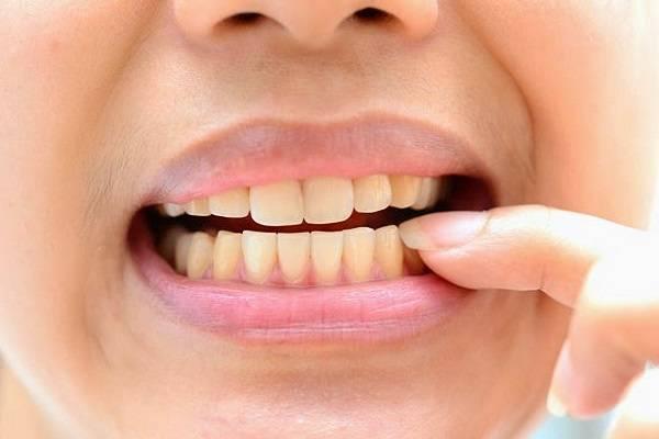 Răng nhiễm màu kháng sinh Tetracyline