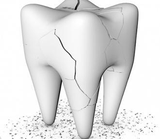 Mơ thấy răng bị vỡ thành nhiều mảnh cảnh báo sức khỏe bạn đang gặp vấn đề