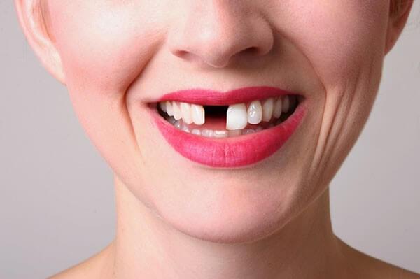 Mơ thấy răng cửa bị gãy là dấu hiệu của không may mắn
