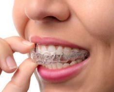 Khay niềng răng trong suốt Invisalign làm từ chất liệu nhựa trong suốt