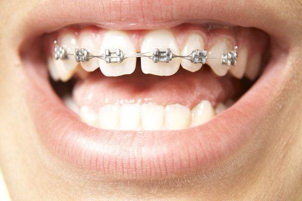 Niềng răng mắc cài kim loại được sử dụng rất phổ biển