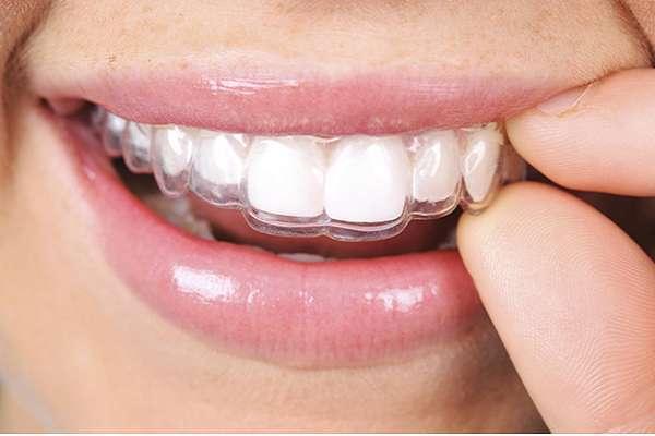 Khay niềng răng trong suốt invisalign được đánh giá an toàn với sức khỏe