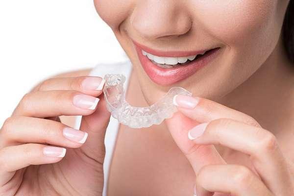 Chi phí thực hiện niềng răng trong suốt invisalign thường khá cao