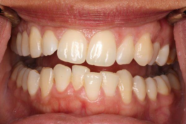 Răng khấp khểnh, mọc ngược vào trong là tình trạng phổ biến hiện nay