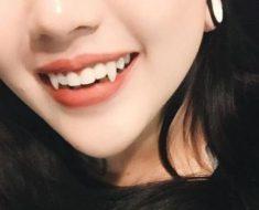 Làm răng nanh nhọn là xu hướng thịnh hành trong giới trẻ