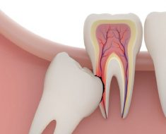 Nhổ răng số 8 có ảnh hưởng và nguy hiểm không?