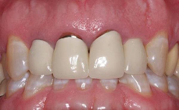 Bọc răng sứ Titan khó tránh được tình trạng đen viền nướu