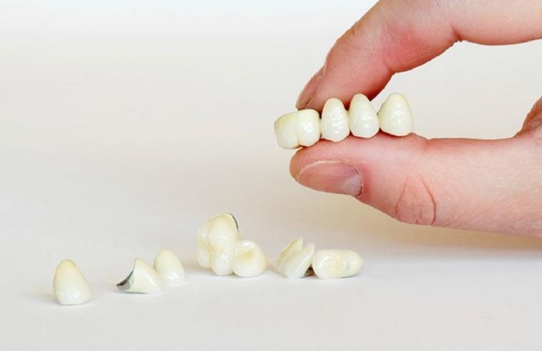 Bọc răng sứ Titan có chi phí hợp lý