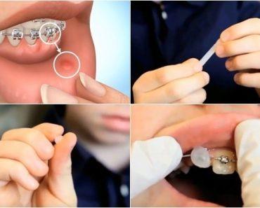 Cách sử dụng sáp nha khoa tương đối đơn giản