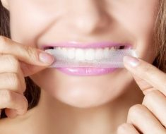 Sử dụng miếng dán trắng răng