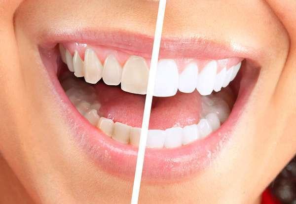 Bất kì ai cũng mong muốn sở hữu hàm răng trắng sáng, đều màu