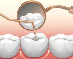 Sau khi lấy tủy răng, bác sĩ sẽ hàn trám răng để bít lại lỗ tủy