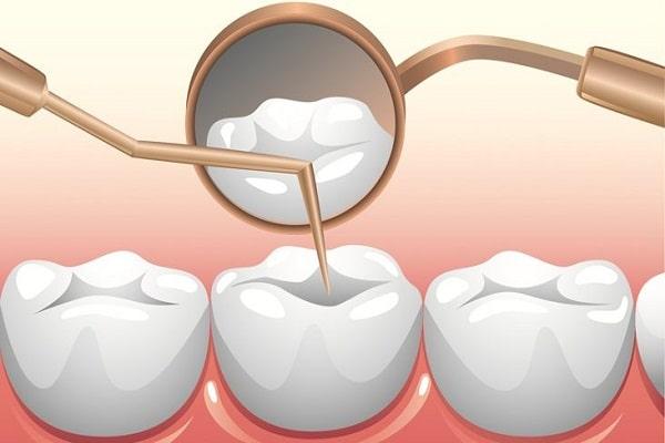 Tủy răng là gì? Khi nào cần điều trị tủy răng?