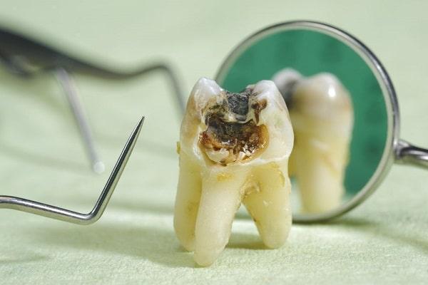 Khi tủy răng bị ảnh hưởng nếu không điều trị tủy răng sẽ gây hậu quả nghiêm trọng