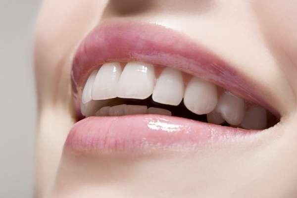 Bọc răng sứ chứa hô giúp tiết kiệm thời gian