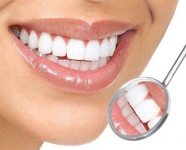 Bọc răng sứ cho bạn nụ cười tự tin