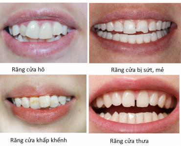 Một số trường hợp có thể bọc răng sứ cho răng cửa