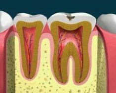 Trường hợp mới bị sâu nhẹ bác sĩ cạo sạch vết sâu trước khi trám răng