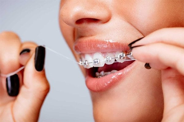 Chú ý chăm sóc răng miệng cẩn thận trong suốt quá trình niềng răng