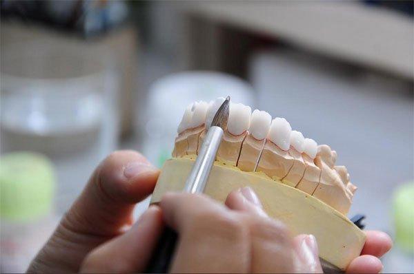 Chế tác răng sứ là bước quan trọng, đòi hỏi sự chính xác cao