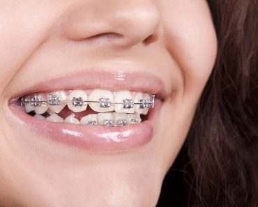 Chi phí chỉnh nha không tính theo từng chiếc răng