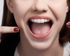 Chi phí niềng răng hô tùy thuộc vào từng cơ sở, phòng khám