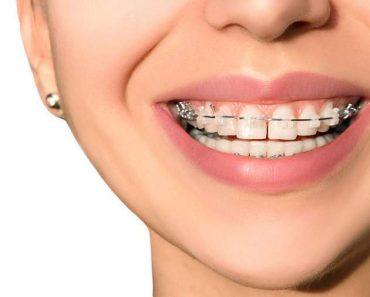 Chi phí niềng răng thưa từ từ 25 triệu – 120 triệu đồng