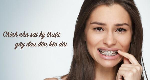 Niềng răng sai kỹ thuật gây đau đớn