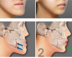 Chỉnh răng móm giúp khớp cắn chuẩn và hàm răng về đúng vị trí của nó