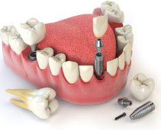 Có nên trồng răng Implant giá rẻ để tiết kiệm chi phí hay không?