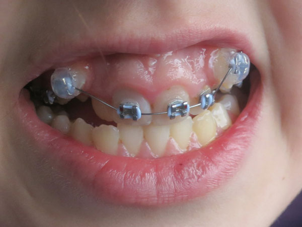 Vẫn có thể thực hiện niềng răng một hàm