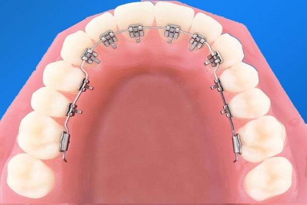 Niềng răng mặt trong hiệu quả chậm hơn niềng răng mắc cài mặt ngoài