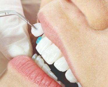 Dán sứ Veneer giúp bạn rút ngắn thời gian thẩm mỹ răng sứ