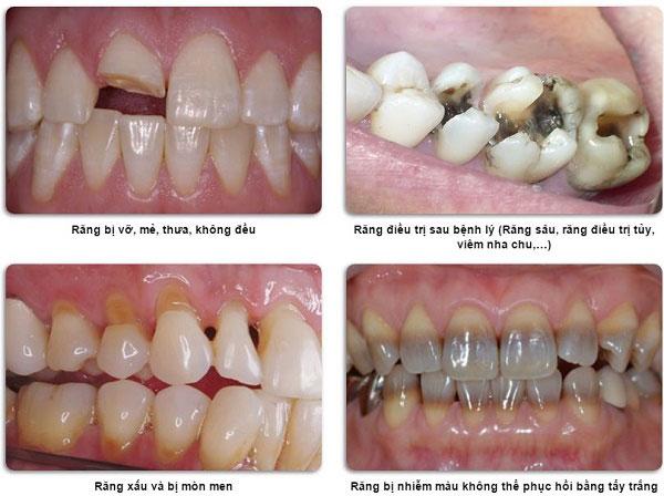 Những đối tượng thích hợp sử dụng răng sứ HT Smile