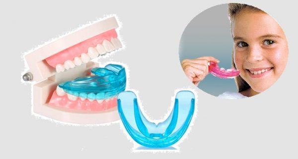 Dụng cụ niềng răng tại nhà thường áp dụng cho trẻ nhỏ